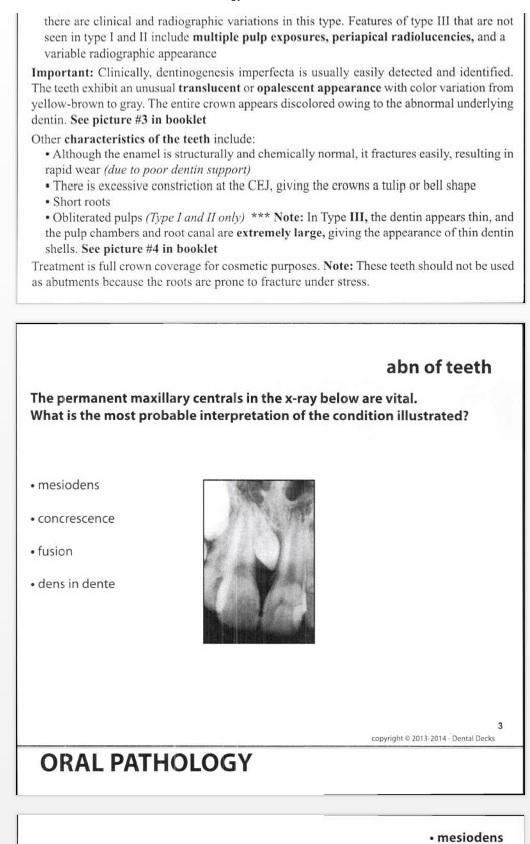 NBDE Part 2 Study Pack: Dental Decks Part 2, Tufts
